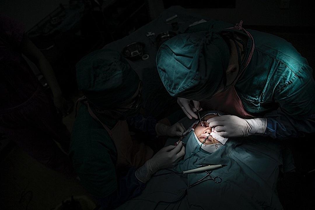 一位女士在進行割雙眼皮和開眼瞼手術。攝: 馮海泳