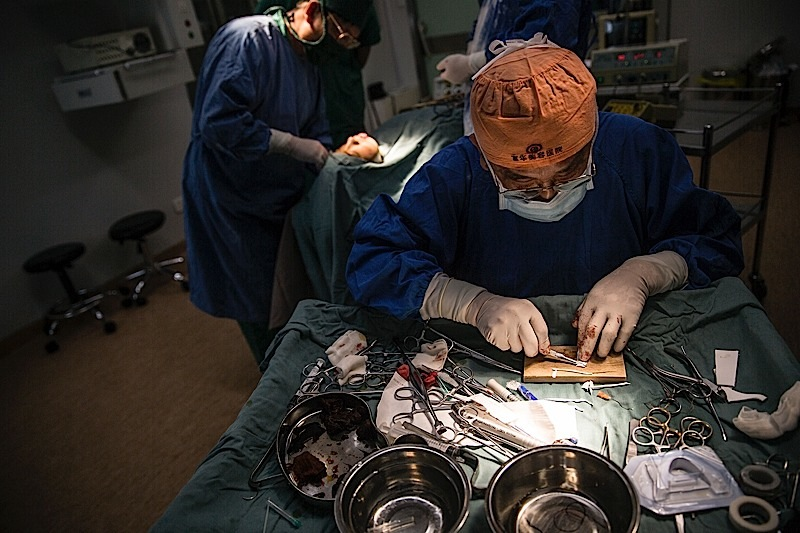 醫生在做下巴假體塑形。植入假體需要多次嘗試效果,形狀不能達到滿意的效果,就要重新取出修正,然後再次植入。攝: 馮海泳