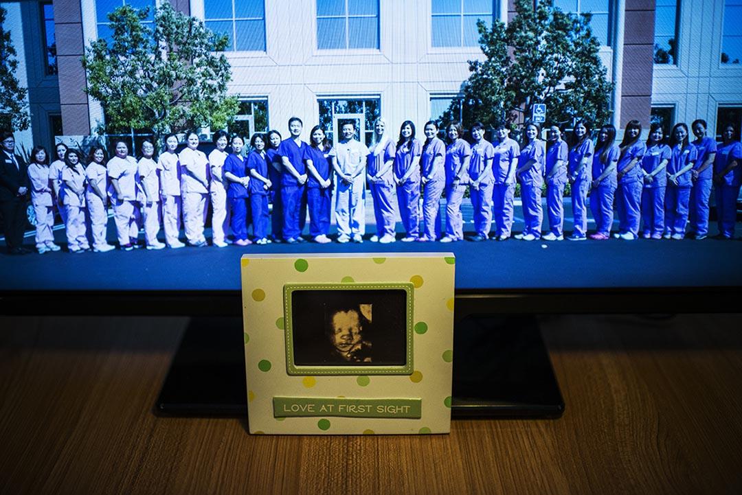 張琳達代孕生的二兒子的B超照片。後面就是美國醫生和技術人員。攝 : Yue Wu/端傳媒