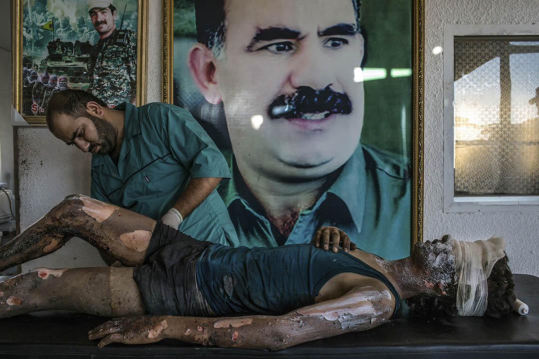 2015年8月1日,敘利亞,一名伊斯蘭國士兵受傷後在接受醫生治療,醫生身後為庫爾德工人黨的主要創始人阿卜杜拉奧賈蘭的肖像,該黨被定性為恐怖組織。攝:Mauricio Lima/The New York Times