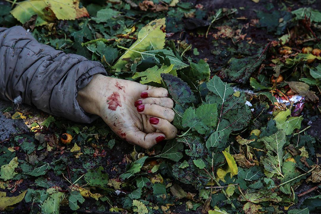2015年10月10日,土耳其首都安卡拉車站發生爆炸,圖為一名受害者染血的右手。攝:Defne Karadeniz/GETTY