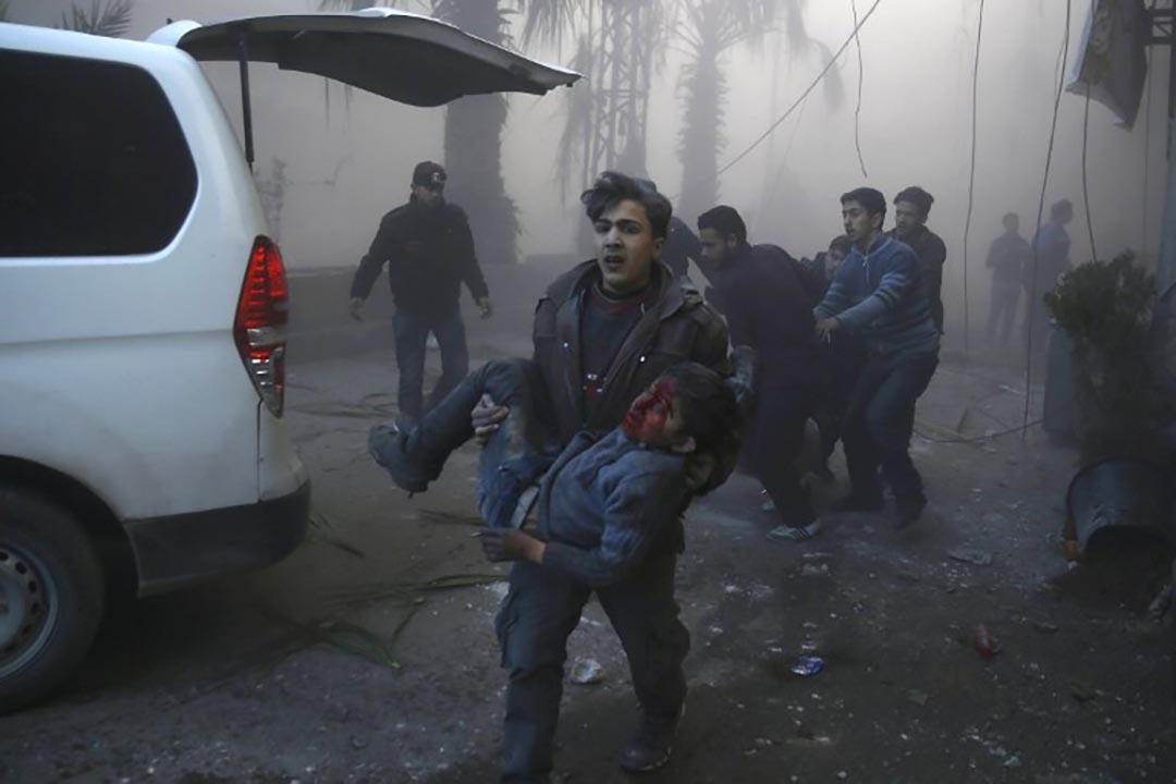 敘利亞首都大馬士革受到空襲後,一名敘利亞男子抱着受傷的兒童離開現場。攝 : Sameer Al-Doumy/AFP
