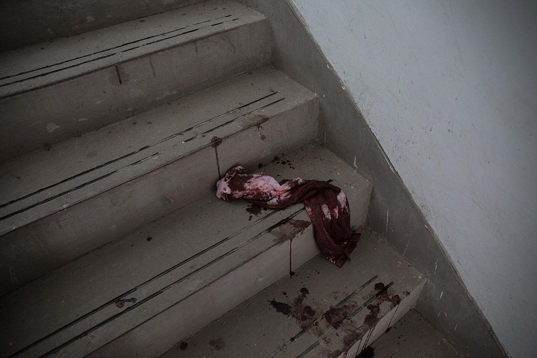 爆炸現場附近的民居,後樓梯留下染血衣物。