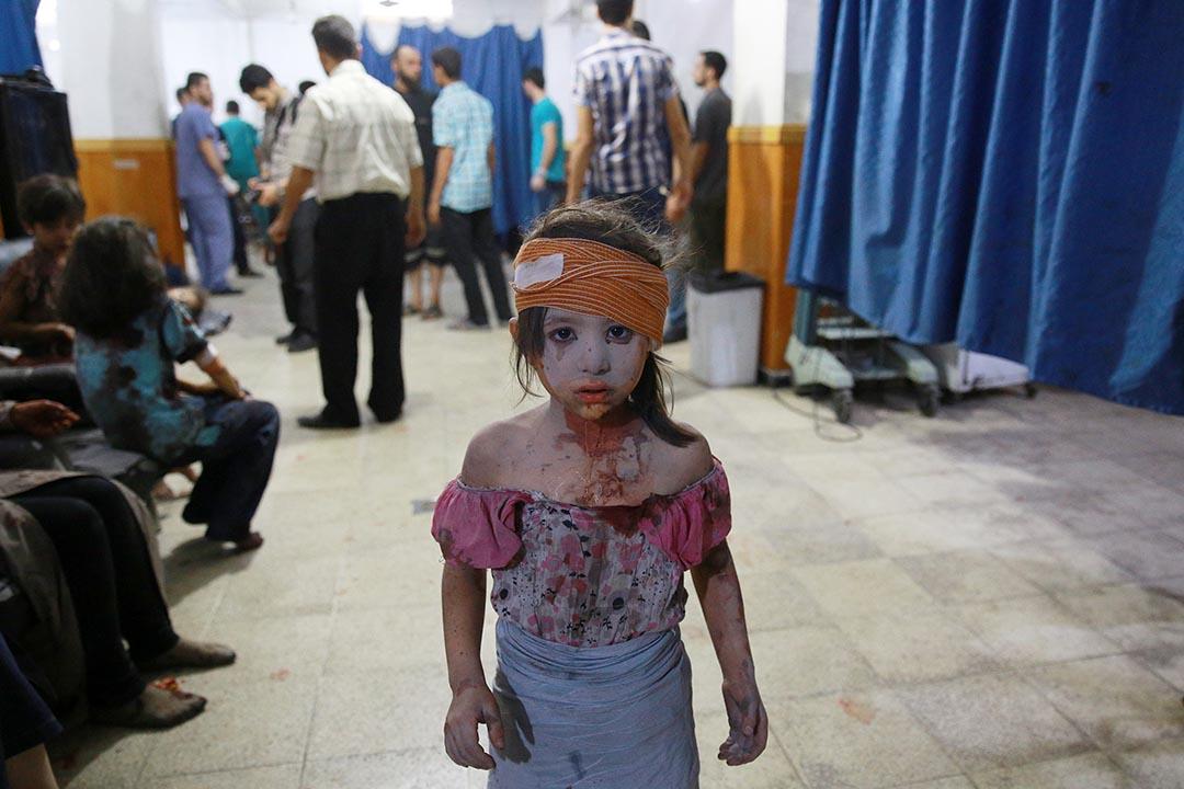 2015年8月22日,敘利亞,政府軍於8月15日開始空襲首都大馬士革,一名受傷女童在臨時醫院接受治療。攝:ABD DOUMANY/AFP