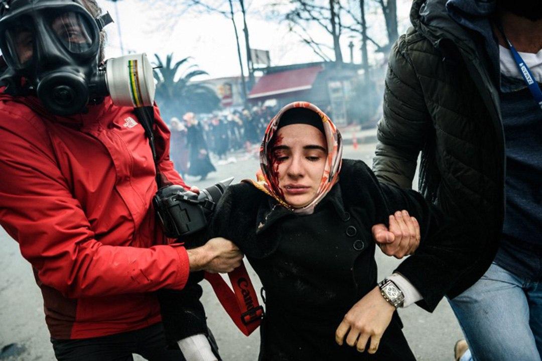 一名受傷的示威者被抬離現場。攝:OZAN KOSE/AFP