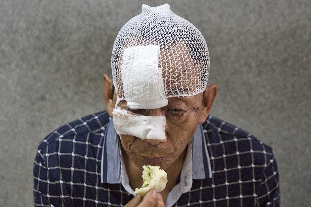 醫院,一位被包紮過的受傷者在吃包子。
