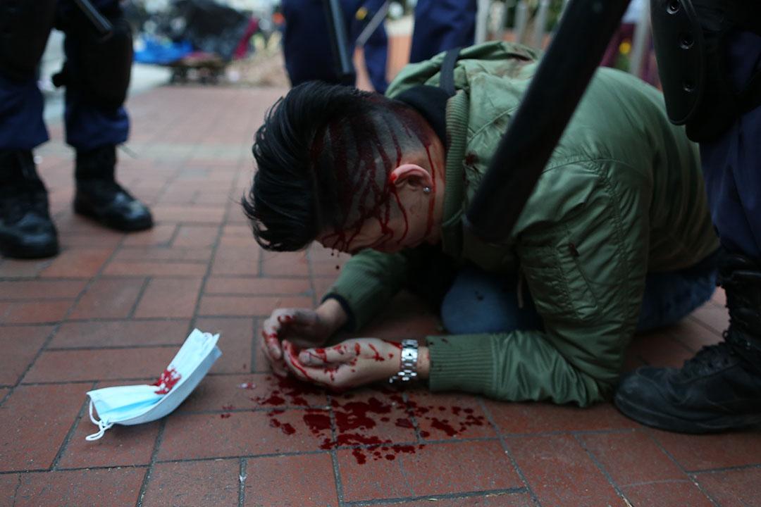 清晨7時,警方在旺角清場期間,一名示威者在山東街近洗衣街被警察使用警棍打至頭部流血,倒臥地上,其口罩跌在身旁。攝:盧翊銘/端傳媒