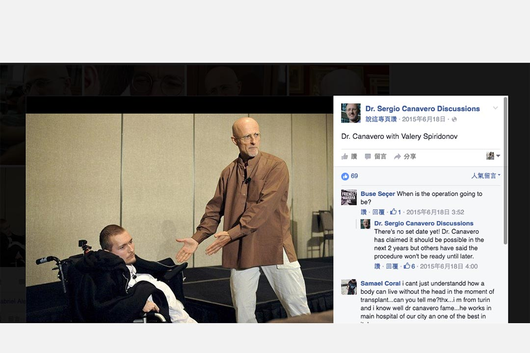 Facebook 專頁「Dr. Sergio Canavero Discussions」上,意大利神經外科醫生卡納維羅(Sergio Canavero)與斯皮里多諾夫的合照。