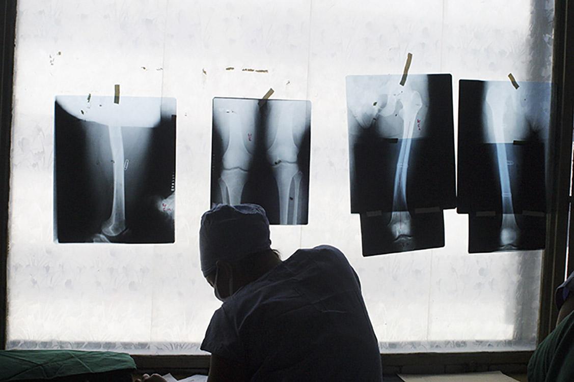 護士整理著X光片。