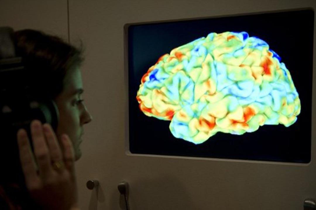 調查發現fMRI軟件有漏洞或致15年大腦研究無效。