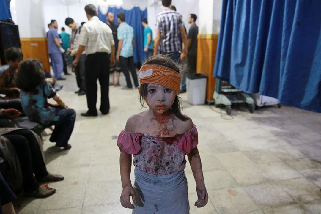 2015年8月22日,一個受傷的敍利亞女童在臨時醫院接受了簡單包紮。