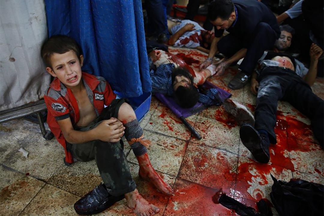 2015年8月12日,一個受傷的敍利亞男孩坐在地上接受治療。