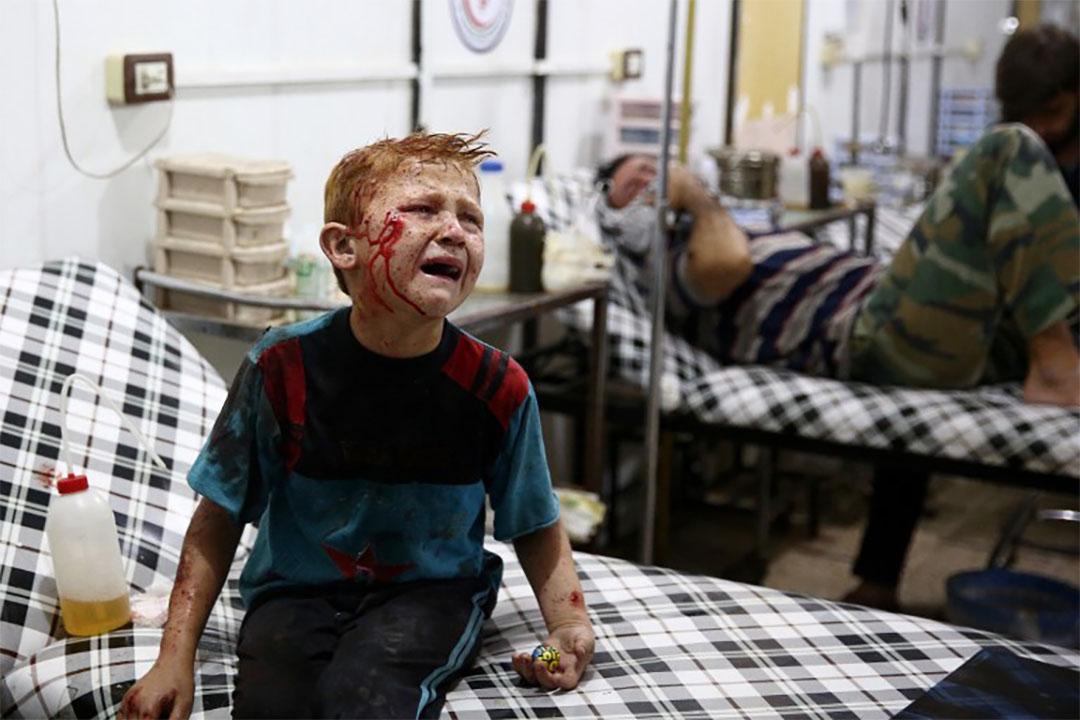 2016年7月16日,一個八歲男童在空襲中受傷,正等待接受治療。