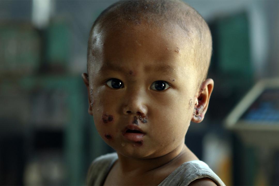 長期生活在塑料廢品中,孩子的臉上生出了毒瘡。