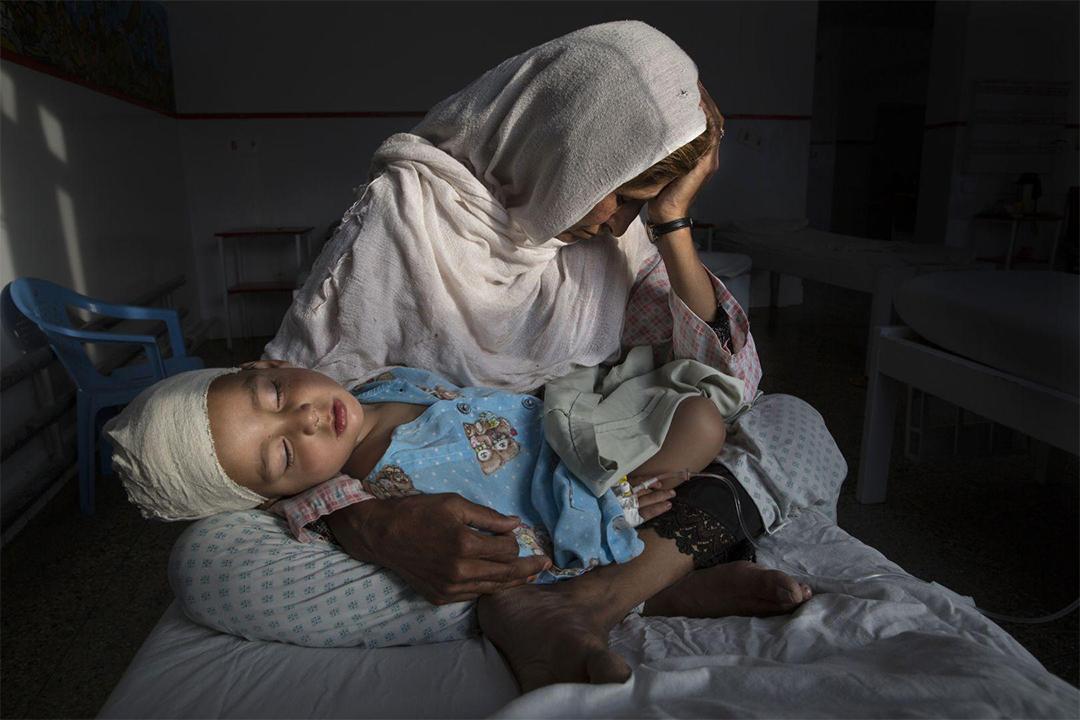 在阿富汗首都喀布爾一間醫院,Najiba正抱著被炸彈炸傷的兩歲侄兒Shabir。