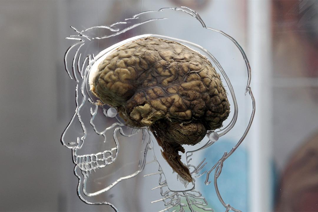 美國和日本科研團隊發現,人腦把信息同時儲存成兩份同樣的記憶版本,一份供當下用,另一份則永久保存。圖為2011年,英國展覽上展出的真人腦。