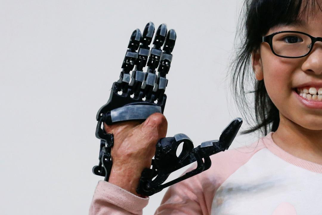 裝上了張憲良為她設計的義肢後,Angel興奮得兩眼發光。