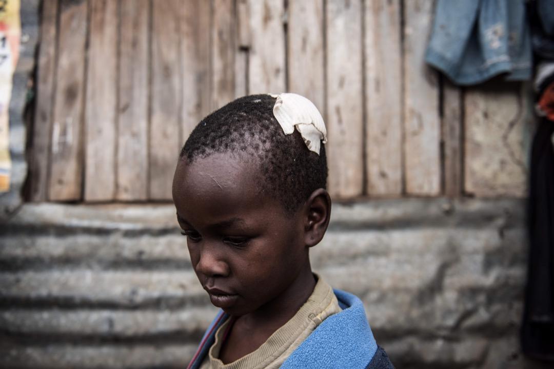 2017年8月15日,在肯尼亞內羅畢,一名女孩懷疑被警察的催淚氣體罐擊傷頭部。當地在大選後發生一連串警民衝突,造成多人傷亡。