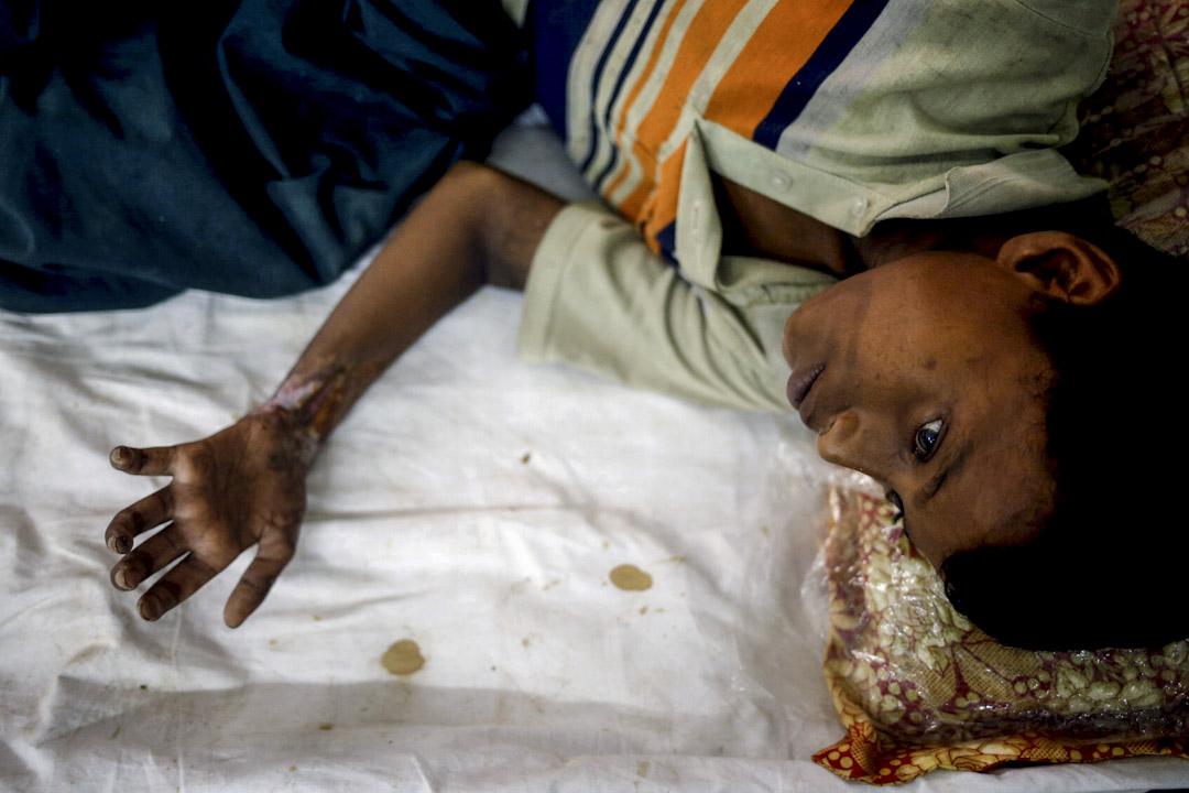 2017年9月19日,一名羅興亞難民男孩在孟加拉的科克斯巴扎爾縣的醫院接受治療,他爸爸稱他們逃難時兒子被緬甸軍隊射傷手部。