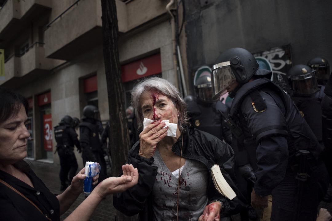 2017年10月1日,西班牙城市巴塞隆拿,一名女士在公投票站外和其他支持加泰隆尼亞獨立的示威者與警察發生衝突後,受傷流血。