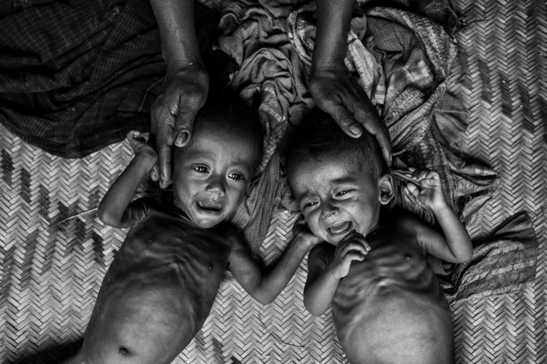 2017年9月27日,兩名營養不良及腹瀉的羅興亞嬰兒在孟加拉科克斯巴扎爾縣的難民營裡哭。