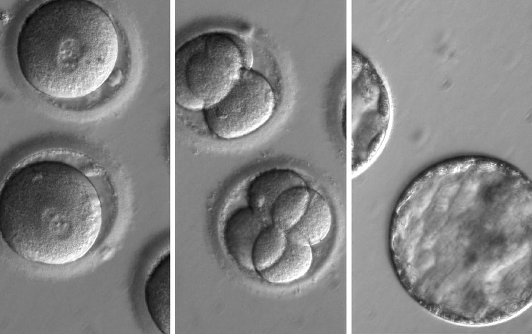 科學家使用CRISPR基因編輯技術來預防導致疾病的突變。 攝:EPA/Oregon Health & Science University