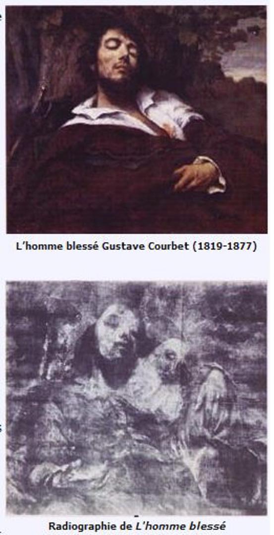 古爾貝的《受傷的男子》(L』Homme blessé,Gustave Courbet)。