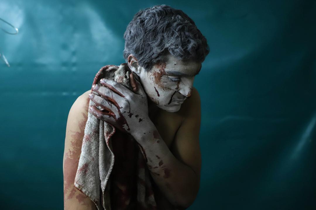 2018年3月13日,敘利亞大馬士革,一名受了傷的敘利亞男子在市郊的一所臨時診所等候治療。