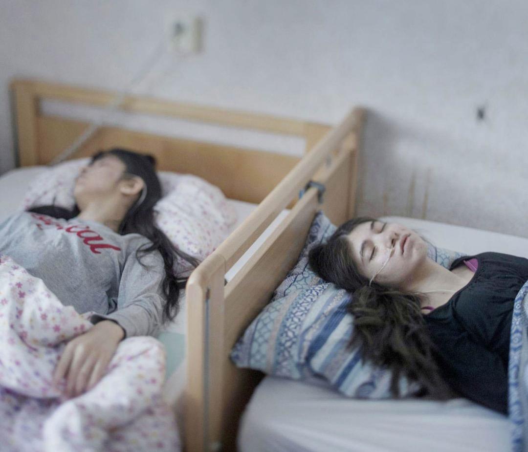 2017年3月2日,瑞典城鎮Horndal,Djeneta(右)已經反應遲鈍並臥床不起近兩年半,妹妹Ibadeta(左)也顯示同樣症狀近六個月。她們都患有「放棄生存症候群」。
