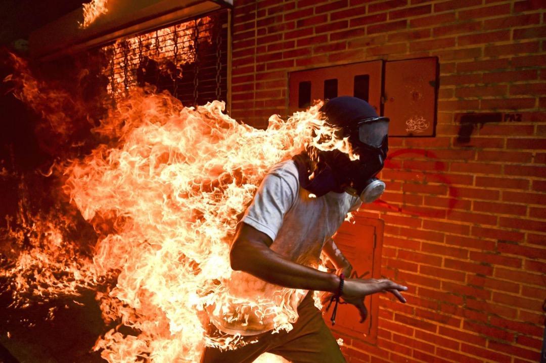 2017年5月3日,委內瑞拉加拉加斯,正參與反政府示威,28歲的José Víctor Salazar Balza與防暴警察發生衝突期間衣服著火,慌忙走避。 攝:Ronaldo Schemidt/AFP