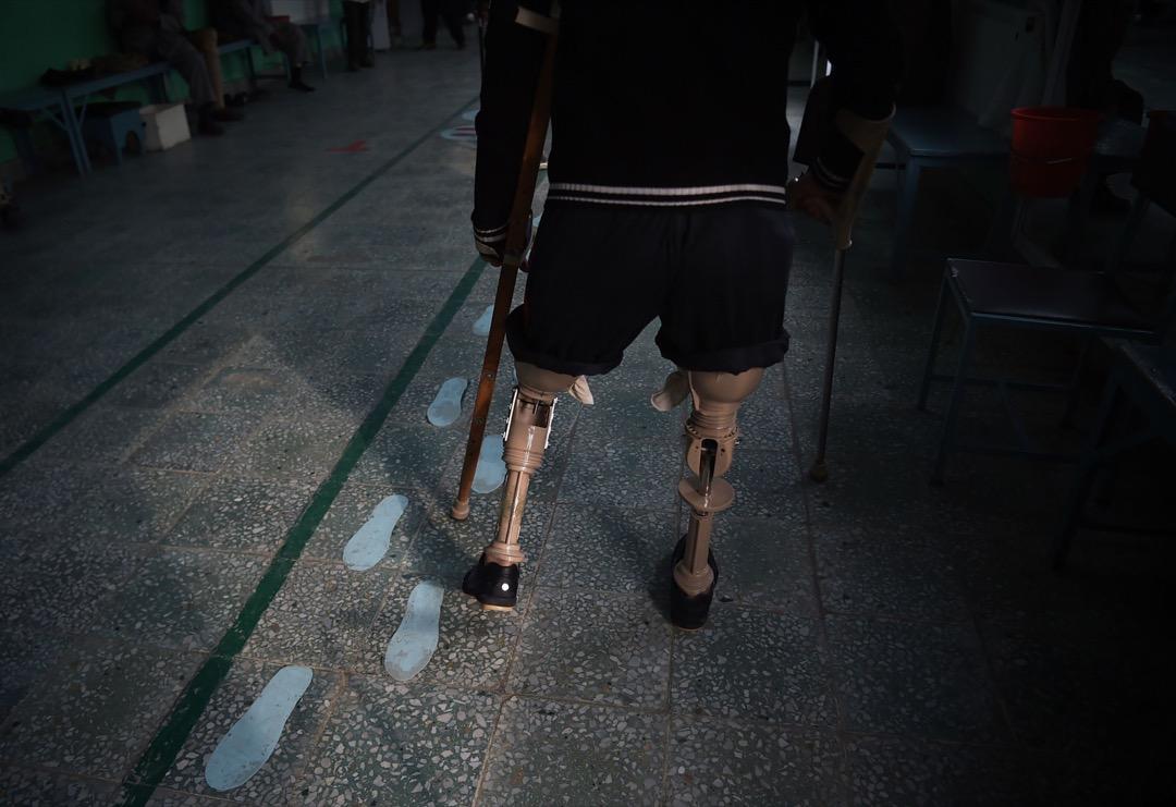 2018年2月13日,一名阿富汗截肢者在醫院靠著義肢行走。該醫院主要處理戰爭傷者及傷殘者,為紅十字會國際委員會所管理。據聯合國報告,2017年為最多阿富汗平民受自殺式炸彈以及其他襲擊而身亡的一年。