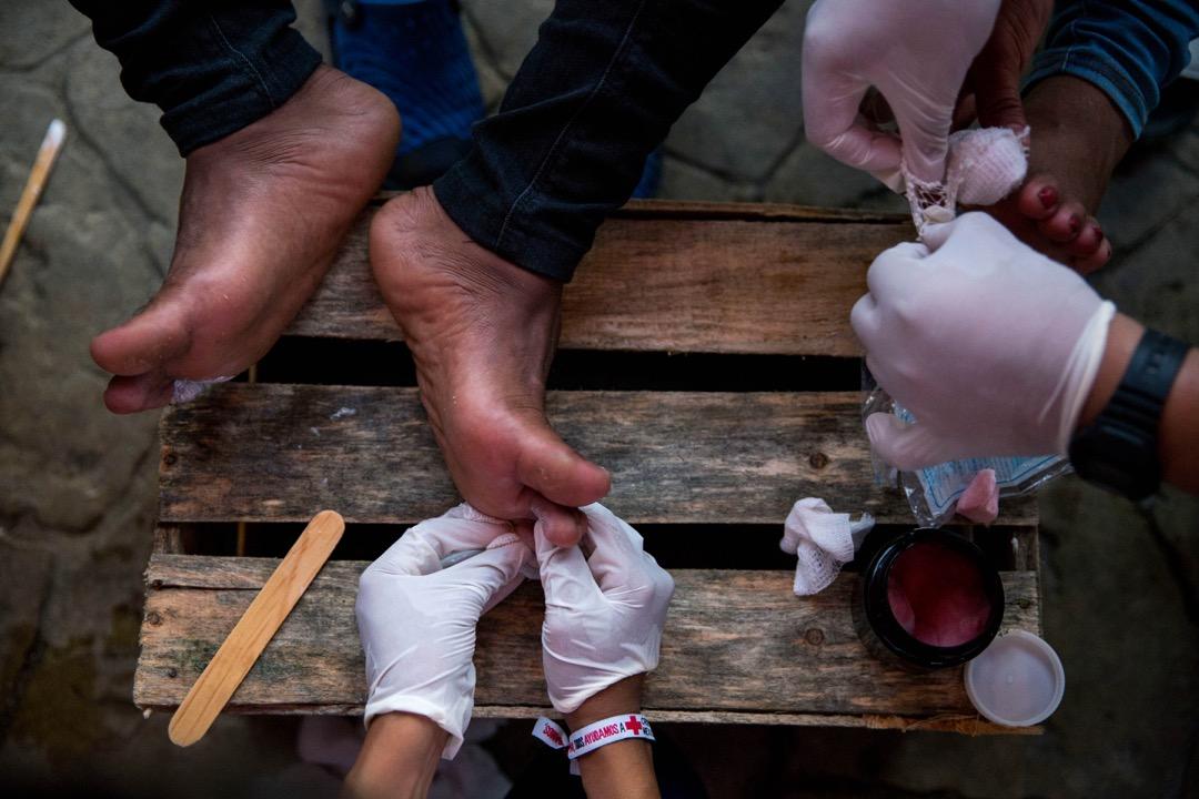 2018年10月26日,移民大隊每天步行約30公里,腳底難免會有損傷或起水泡,墨西哥紅十字會義工到大隊於阿里亞加休息的地方為他們處理傷口。