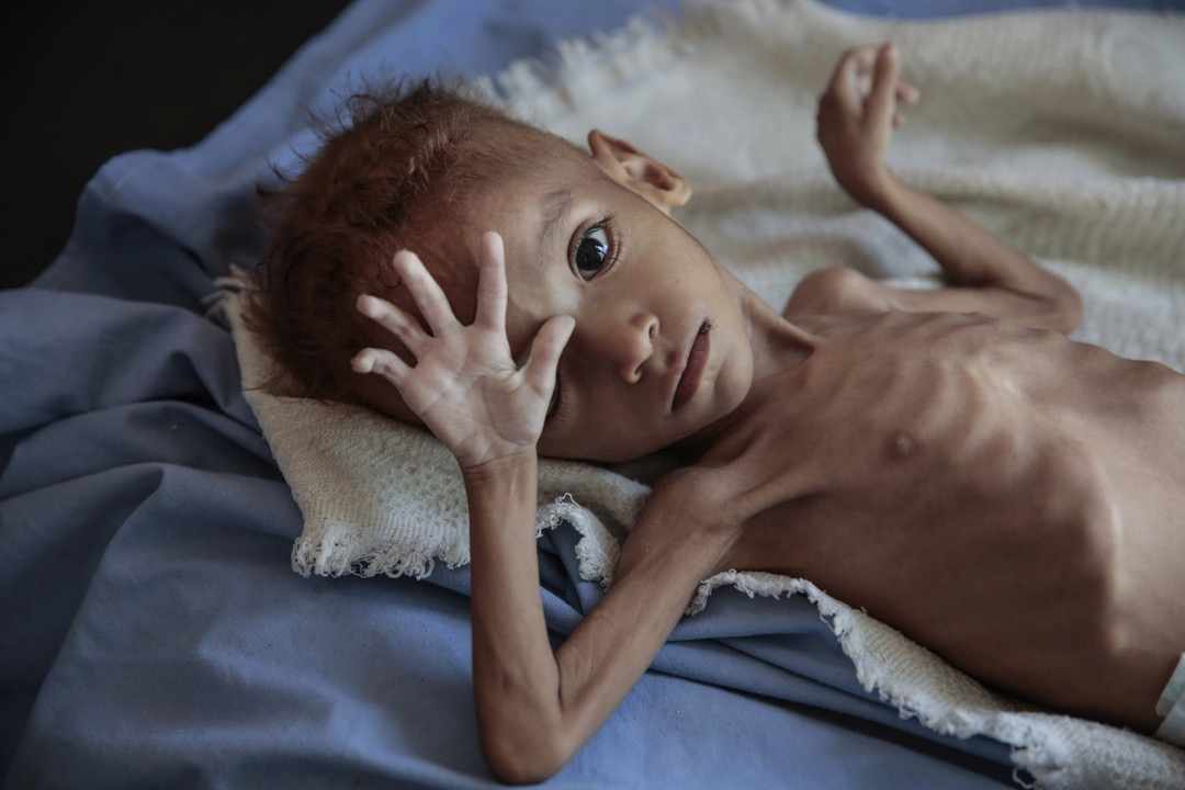2018年10月1日,也門哈傑省的阿斯拉姆健康中心,一名嚴重營養不良的男孩躺臥在病床上。也門內戰引發全球最嚴重人道危機,霍亂、營養不良和其他流行性疾病在當地貧困社區中爆發。