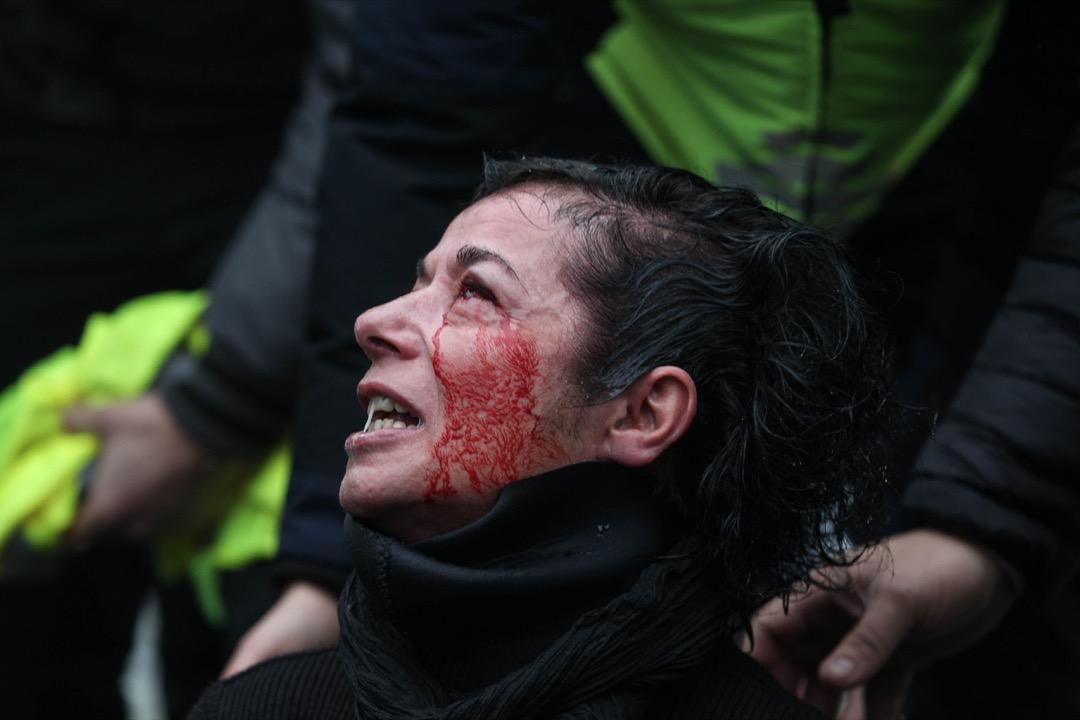 一名示威者眼睛受傷流血。