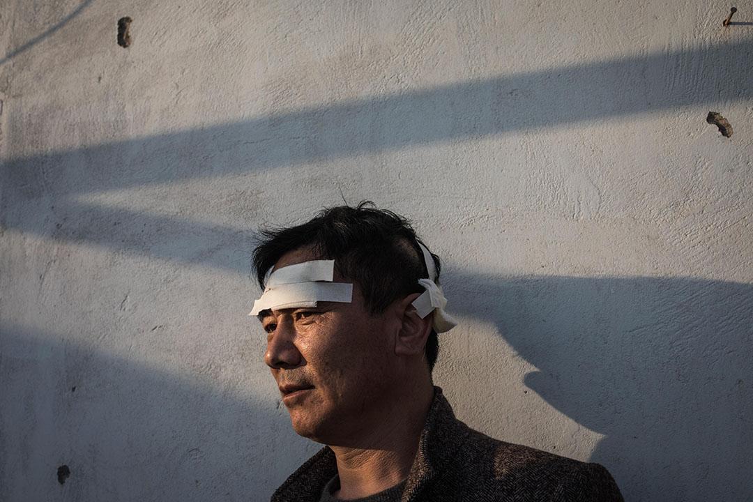 2019年3月23日,王商村一名在爆炸受傷的村民。