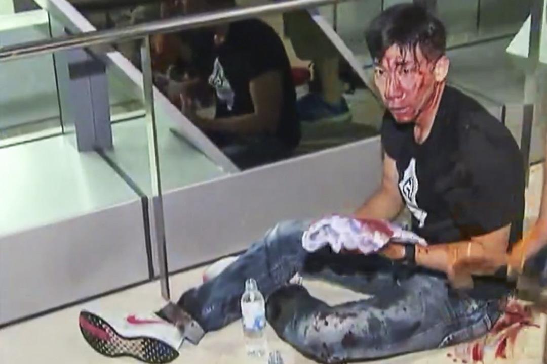 前無線新聞主播柳俊江被白衣人士以鐵通砸向頭部,血流披面。