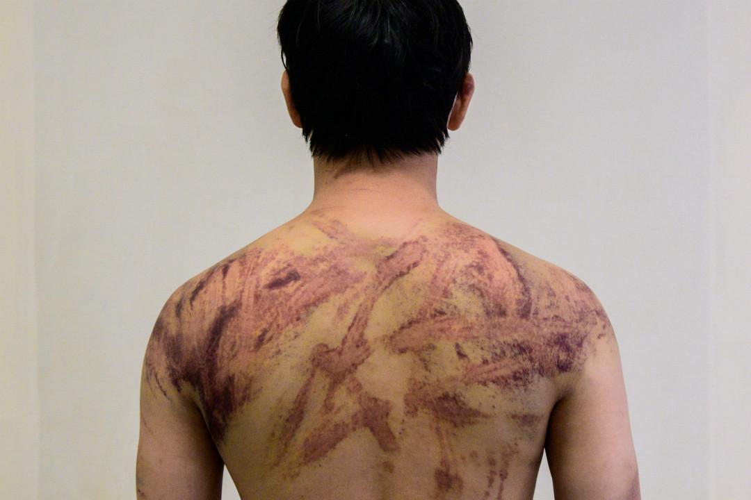 一名元朗居民,在家附近餐館做廚師,7月21日晚回家路上被「白衣人」毆打。照片拍於2019年7月24日,香港一家醫院。 攝:Anthony Wallace/Getty Images
