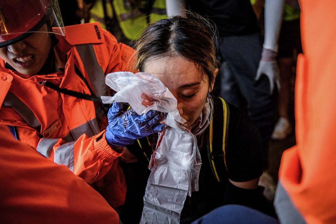 2019年8月11日,香港尖沙咀示威者與警方對峙時,一名女子眼睛受傷。