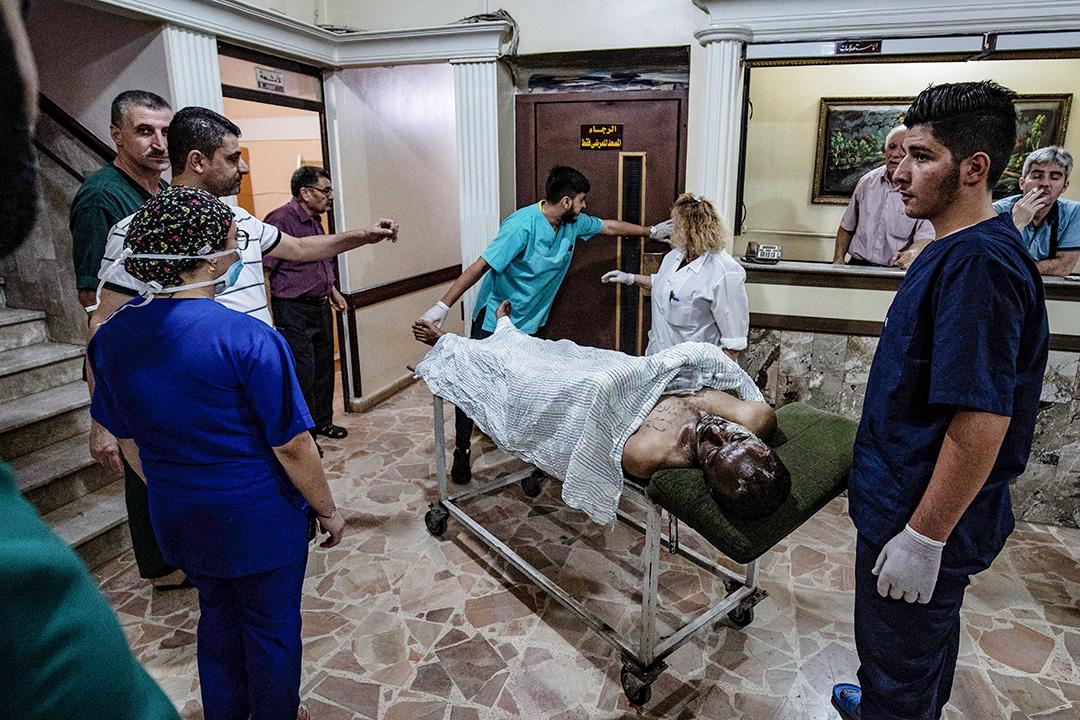 2019年10月13日,土耳其空襲一批載有平民和新聞記者的車隊後,一名受傷男子在敘利亞東北部庫爾德城市卡米甚利的一家醫院接受治療。