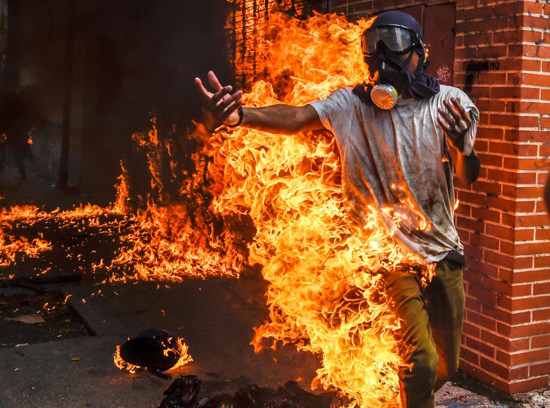 2017年5月3日,一名委內瑞拉反政府示威者。
