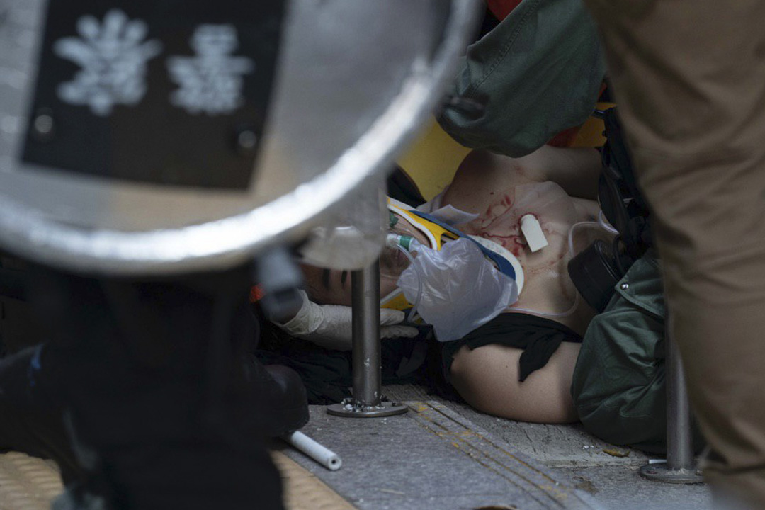 2019年10月1日,首次有示威者被實彈擊中,中彈者為中五學生。