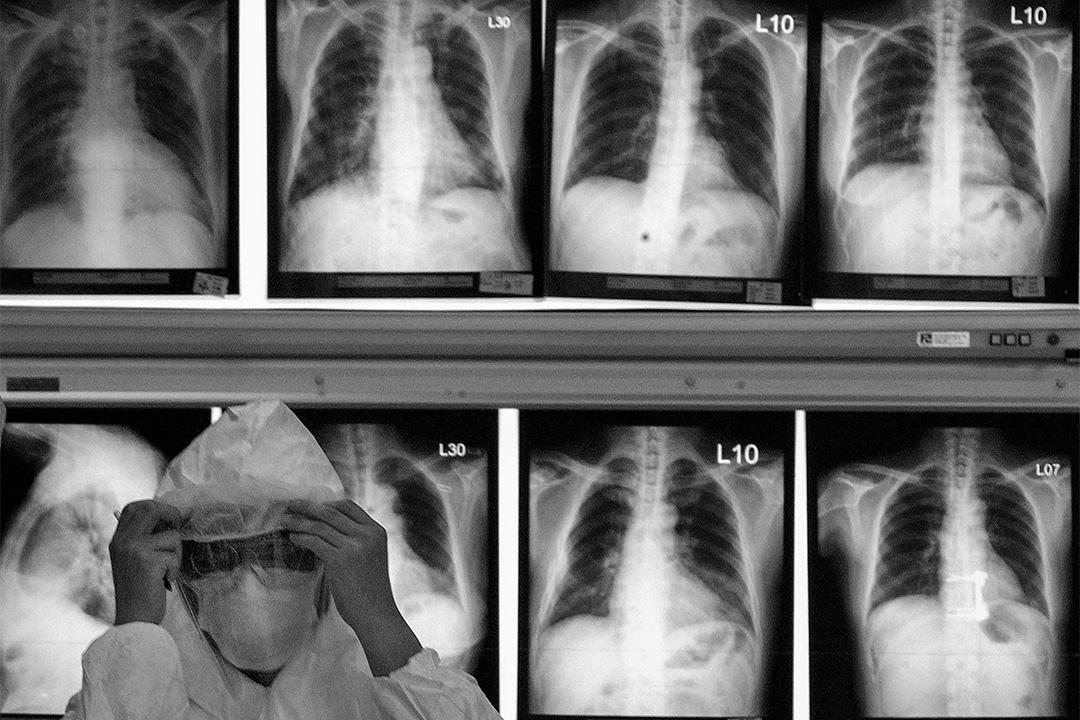 2003年5月27日,醫護人員在台北國立台灣大學醫院的患者X光片前調整口罩。