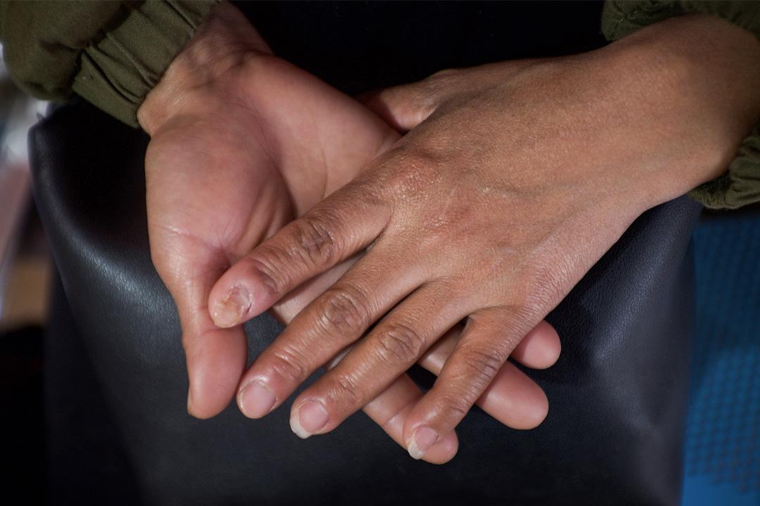 一位緬傭的雙手。