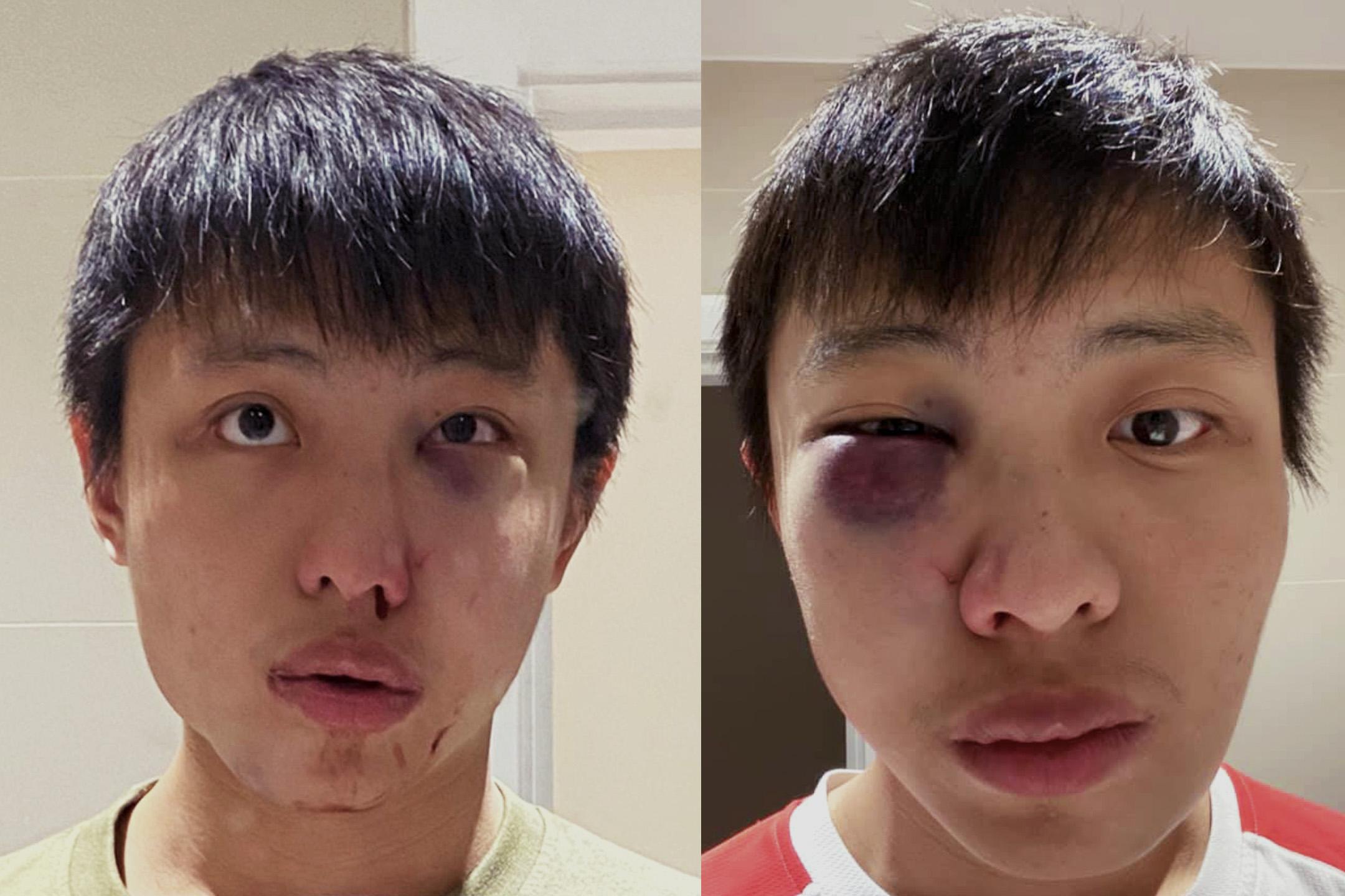 在英國遇襲的亞裔學生Jonathan Mok。 圖:網上圖片