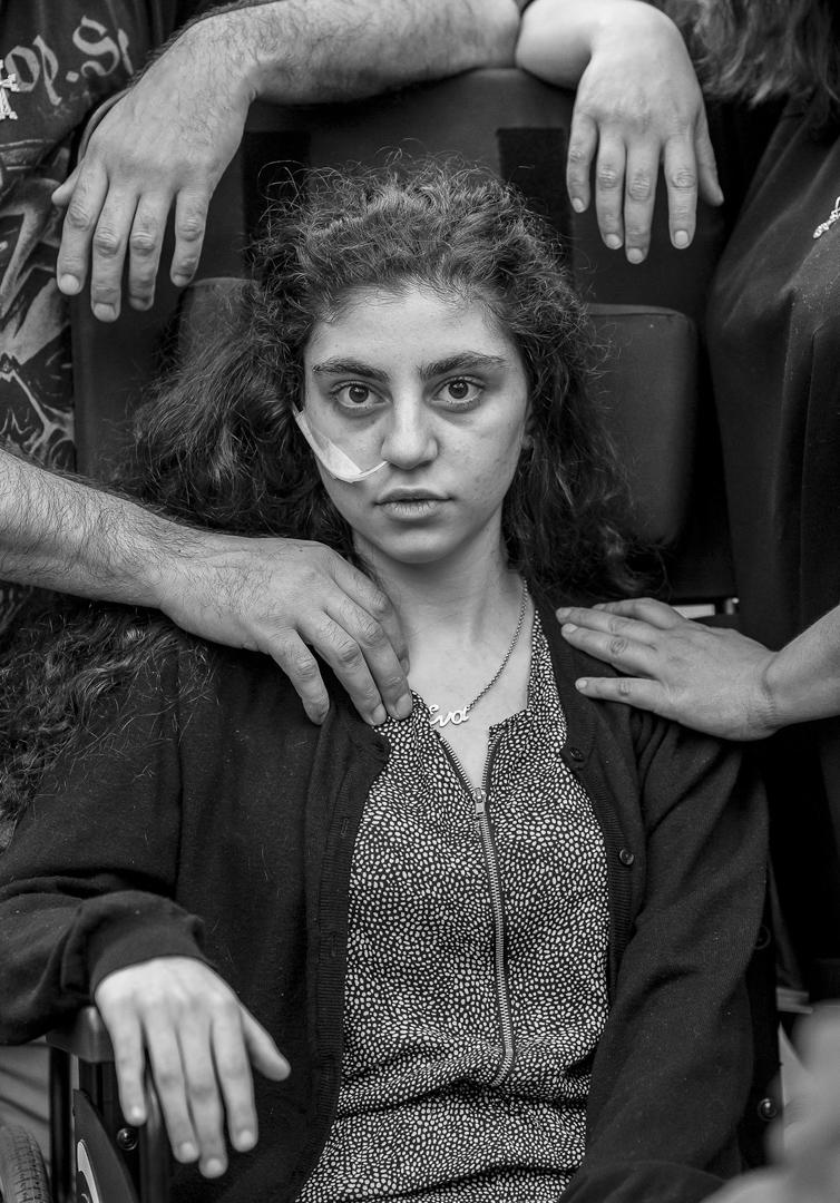 2019年6月1日,波蘭波德科瓦萊希納的難民營裡,一個患上放棄生存症候群 (Resignation syndrome)的15歲女孩坐在輪椅上。放棄生存症候群是一個在90年代開始只出現在瑞典的難民兒童身上的怪病,患者會不進食不說話,陷入昏迷狀態。