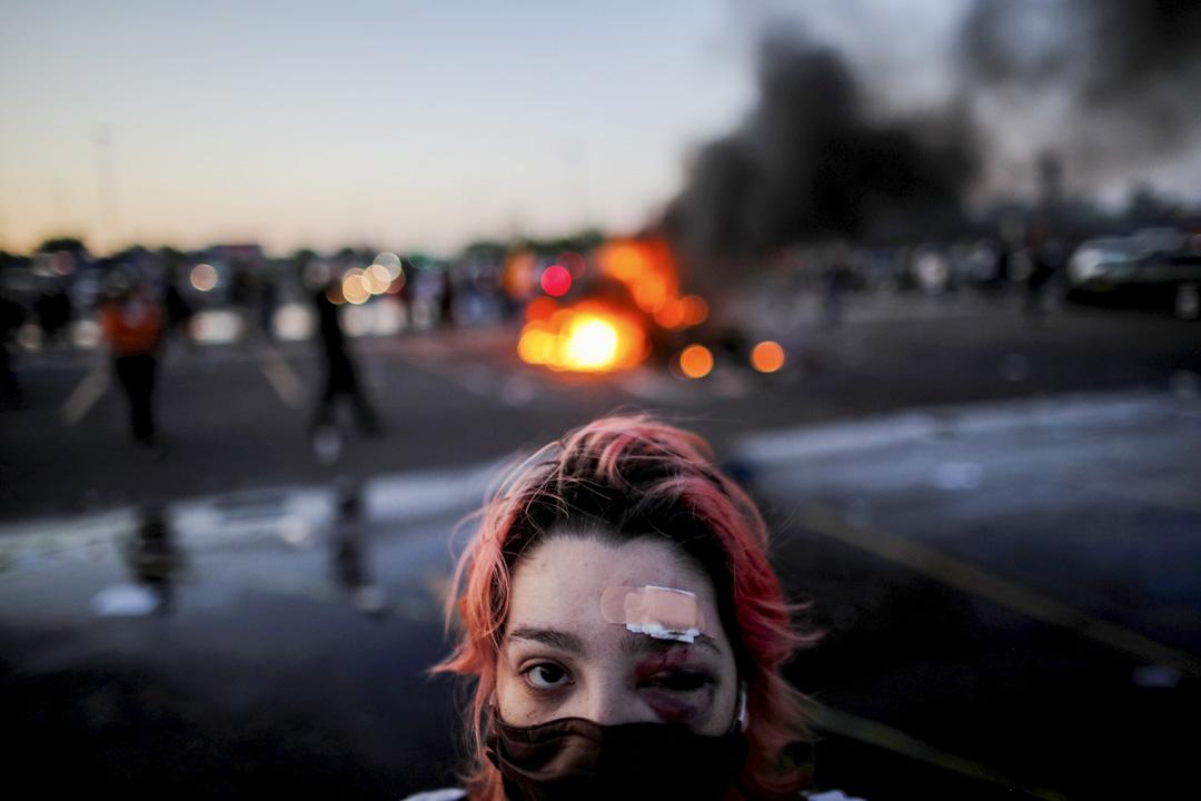 2020年5月28日美國明尼蘇達州阿波利斯市,一名示威者眼部被橡膠子彈擊傷。