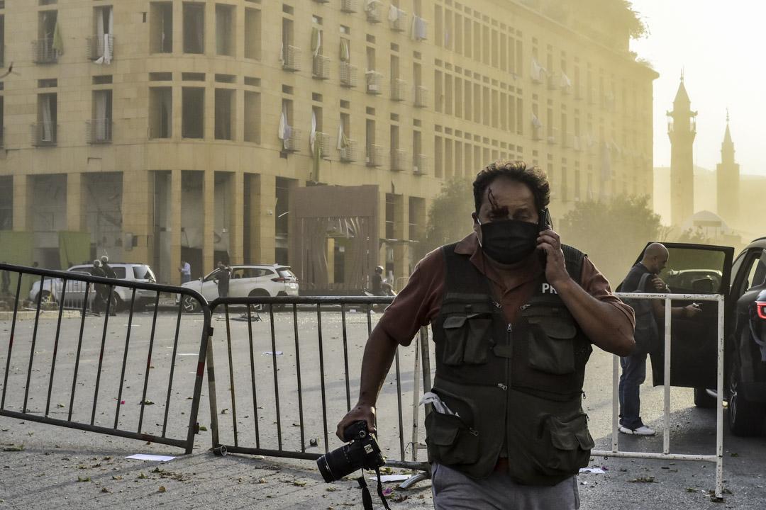 一名身穿記者背心的攝影師在爆炸現場受傷。