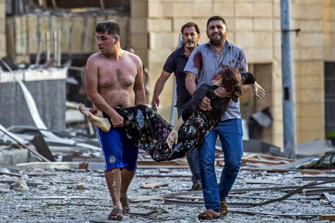 一名在爆炸中受傷的女子被抬離現場。