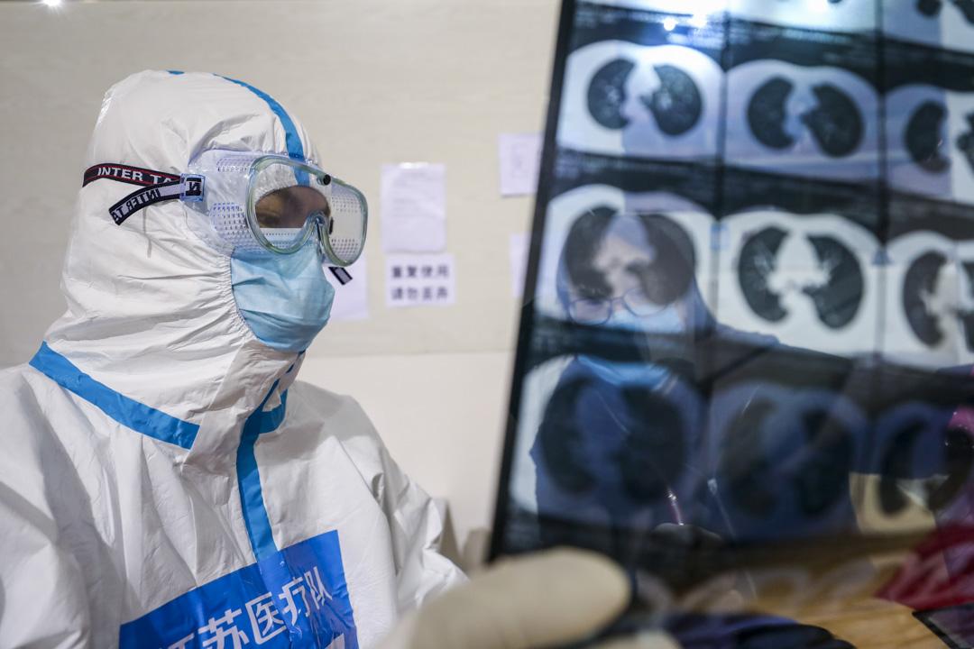 2020年3月5日,一名醫護人員在分析一名新冠肺炎患者的肺部電腦切片掃描。