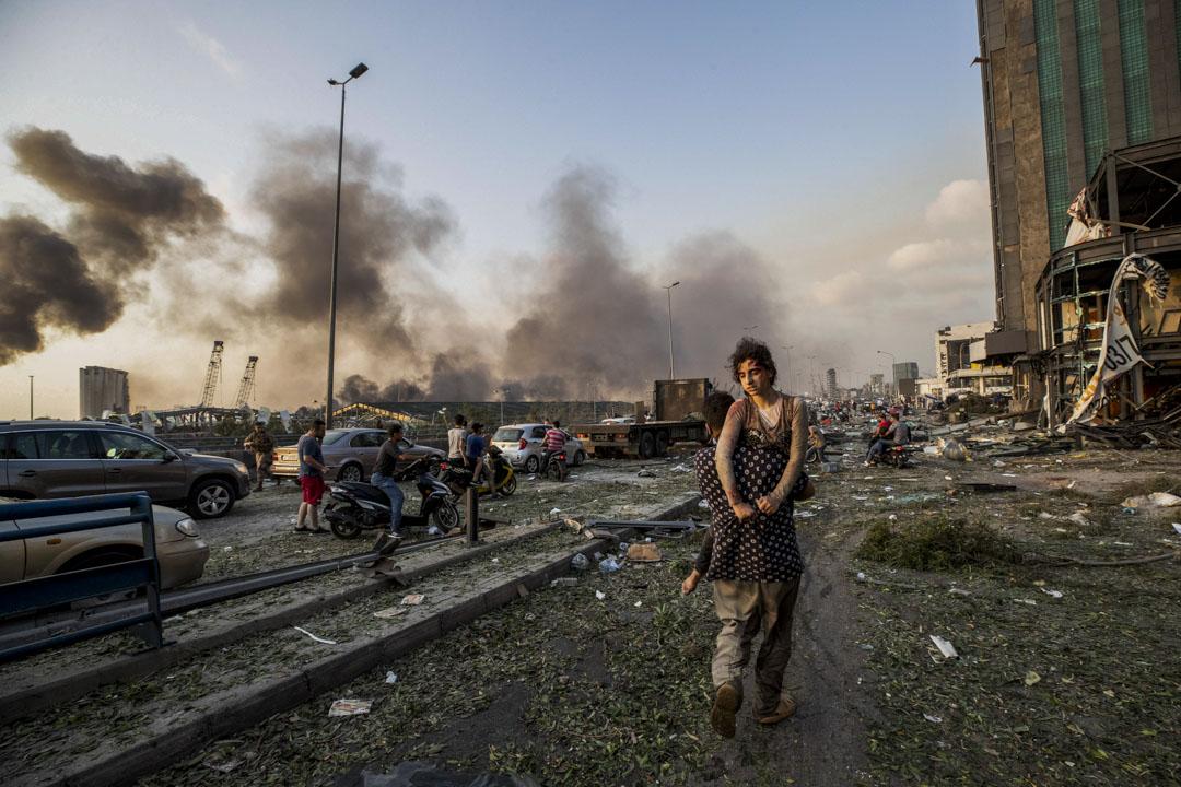2020年8月4日,黎巴嫩首都貝魯特港口附近發生劇烈爆炸,現場升起蘑菇雲。事件最終造成至少135人死亡,超過4000人受傷,事發當天一名男士抬著受傷的女孩離開爆炸現場。